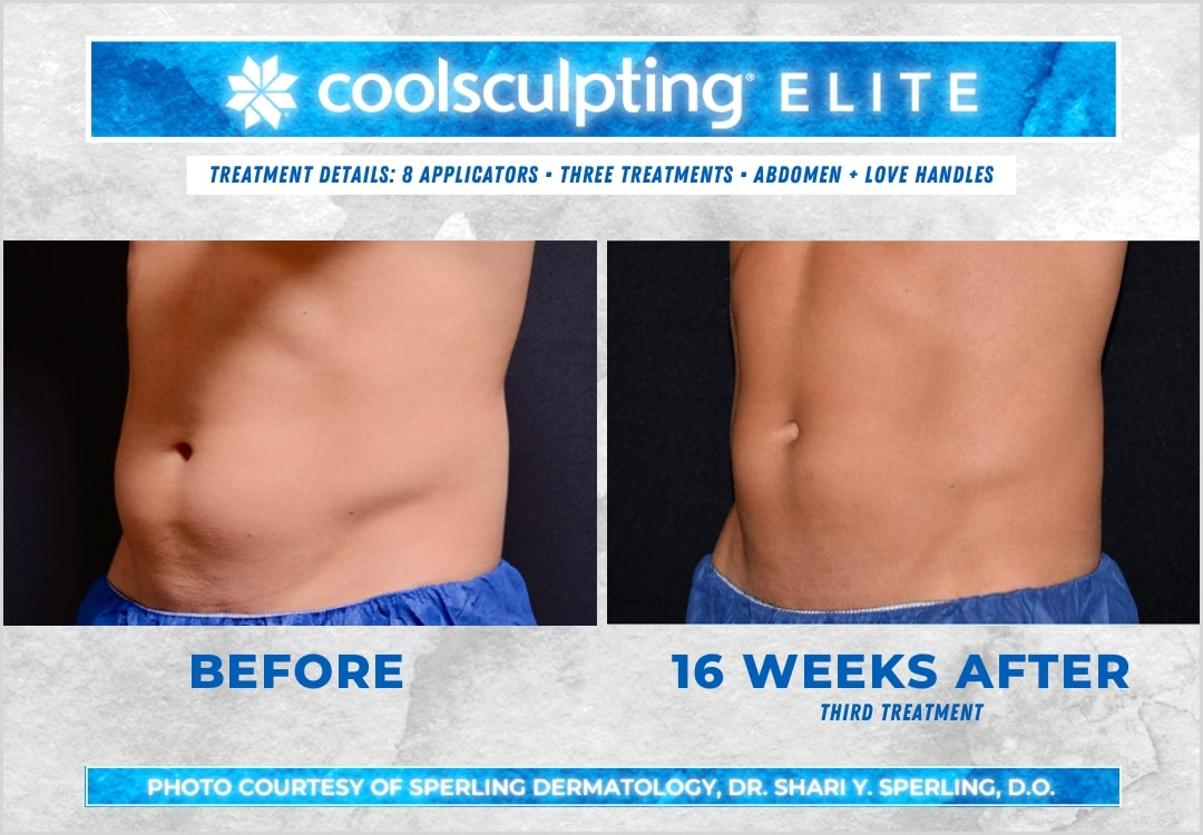 Before & After Abdomen CoolSculpting in New Jersey