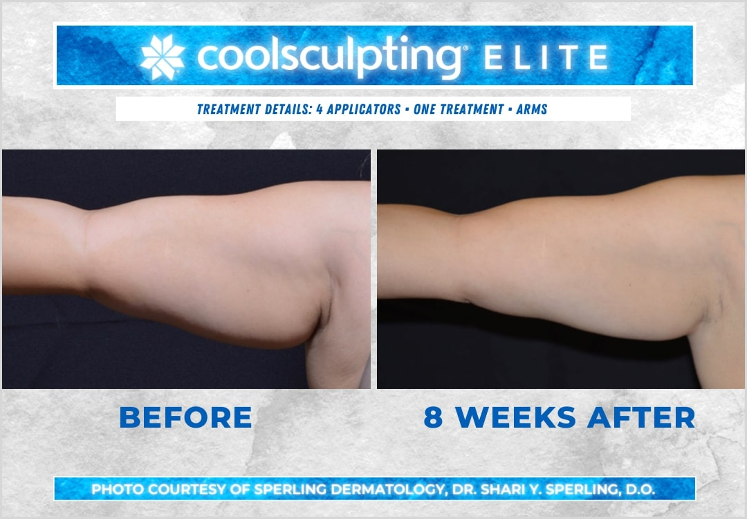 Before & After Arms CoolSculpting in New Jersey