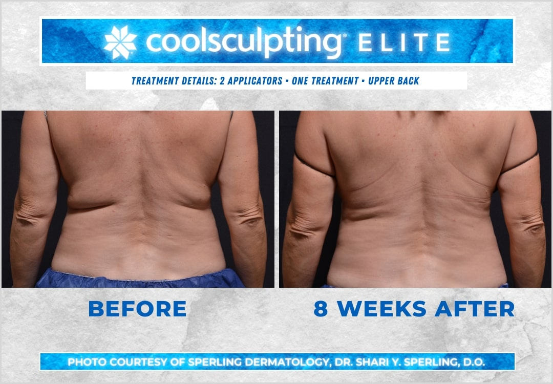 Before & After Bra Line CoolSculpting in New Jersey