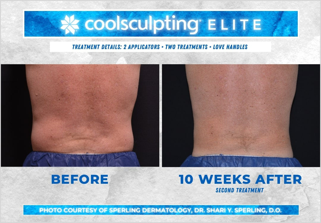 Before & After Love Handles CoolSculpting in New Jersey