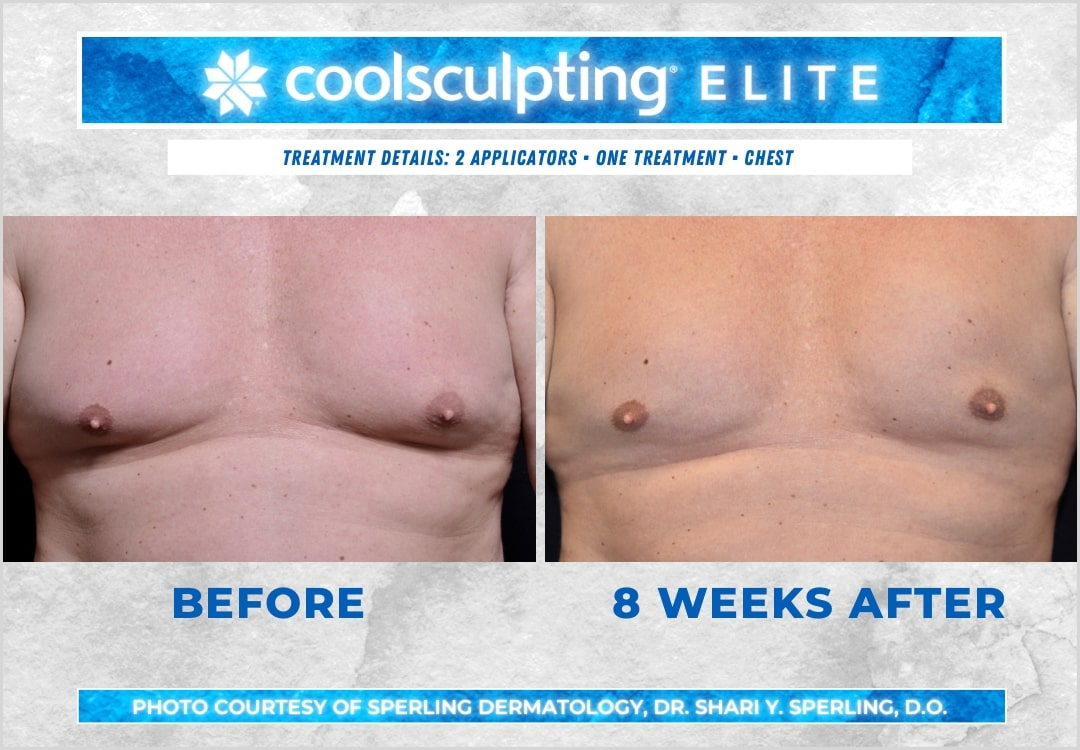 Before & After Pecs CoolSculpting in New Jersey