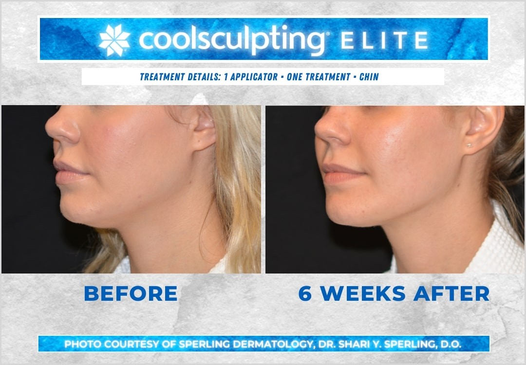 Before & After Submental Fat CoolSculpting in New Jersey