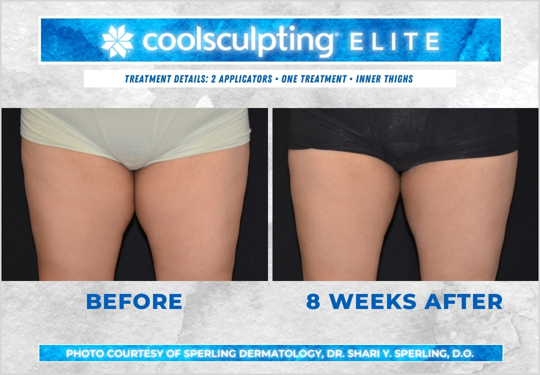 Before & After Thighs CoolSculpting in New Jersey